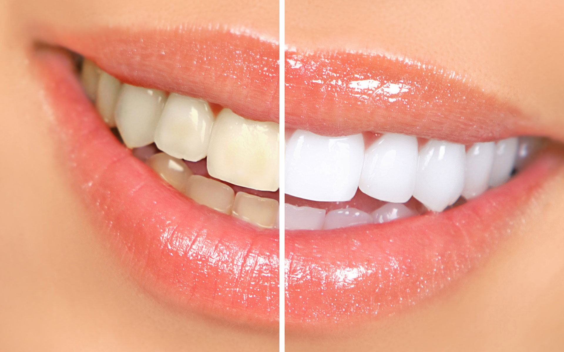 Cosmetic Dentistry Chino - Your Chino Dentist